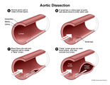Illustration of amicus,medical,aortic,dissection,aorta,false,lumen,adventia,media,intima,aorta,wall,occlusion,artery,section,tear