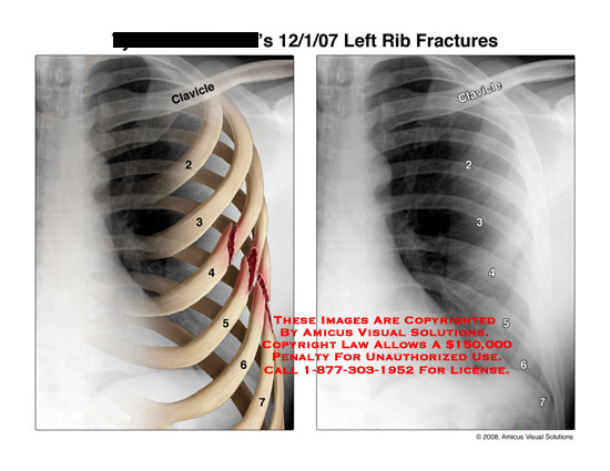 Illustrations of 4-7 rib fractures along with X-ray.