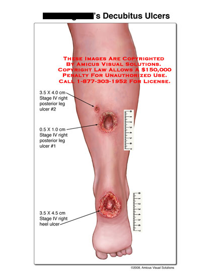 Stage 4 posterior leg ulcers and heel ulcer.