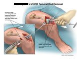 Removal of hardware through incision above knee.