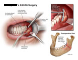 Illustration of amicus,surgery,oral,mouth,mandible,hematoma,mucobuccal,gums,fracture,plate,screws