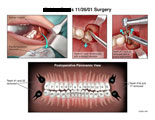 Painful hardware removed, tooth extractions, and panoramic view of teeth.
