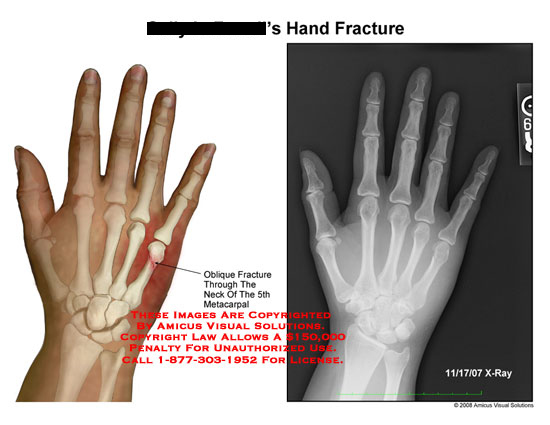 amicus,injury,hand,wrist,fracture,metacarpal,oblique,radiology,x-ray