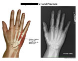 Oblique fracture through neck of 5th metacarpal.