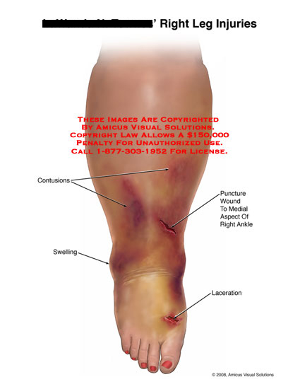 Medical diagrams and resources regarding Contusions, swelling, puncture wound, and laceration around ankle..