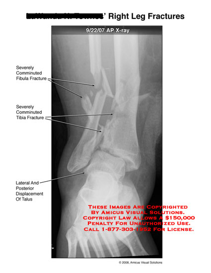 amicus,injury,fracture,leg,ankle,tibia,fibula,severe,comminuted,displaced,shattered,displacement,talus,x-ray