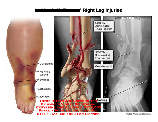 amicus,injury,leg,tibia,fibula,fractures,fractured,comminuted,displaced,contusions,swelling,vascular,artery