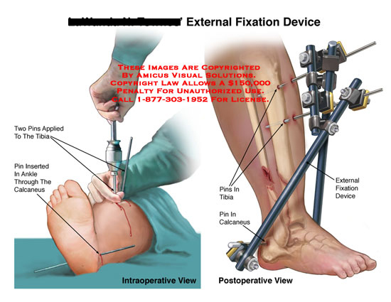 Fixation hardware being installed, and post-op view of device in place.