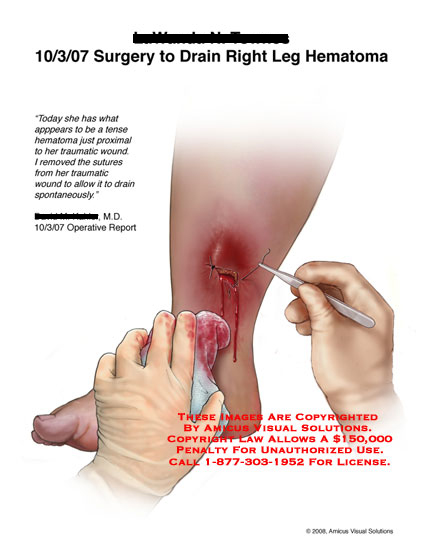 Medical diagrams and resources regarding Sutures removed from wound to let hematoma drain..