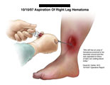 Hands and syringe removing dark blood from hematoma on leg.