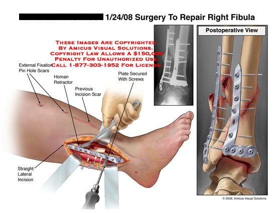 Open leg incision with plate and screws being attached to fibula.