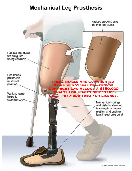 amicus,medical,prosthetic,prosthesis,leg,artificial,mechanical,pistons,springs,cushion,knee,foot,cane,walking
