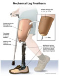 Stocking over stump, pistons and springs of artificial leg.