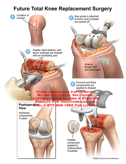 Saw shaping femoral and tibial components, and hardware placement.