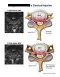 C5-6 protrusion and C6-7 herniation with axial MRI.