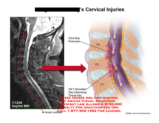 amicus,injury,cervical,disc,protrusion,herniation,C5-6,C6-7,sagittal,mri,thecal,lordosis