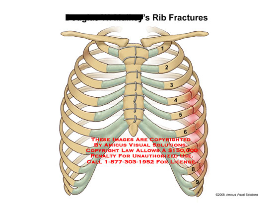 Left ribs 4 through 8 fractured, with sternal wires in place.