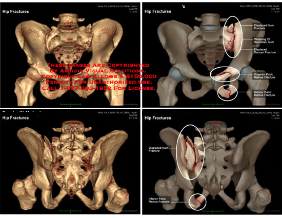 3D volumetric illustrations of pelvic fractures from multiple angles.