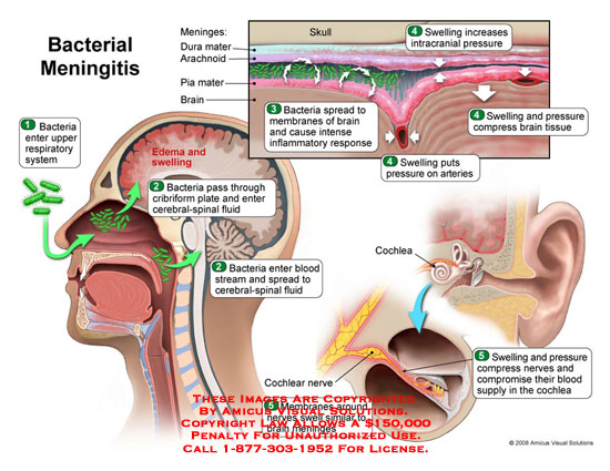 amicus,medical,infection,bacterial,meningitis,inflammatory,swelling,brain,meninges,cerebral,spinal,fluid,cochea,cochlear,nerve,ear,hearing,loss,meningococcal