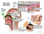 Pathway of infection, brain swelling, and cochlear nerve damage.