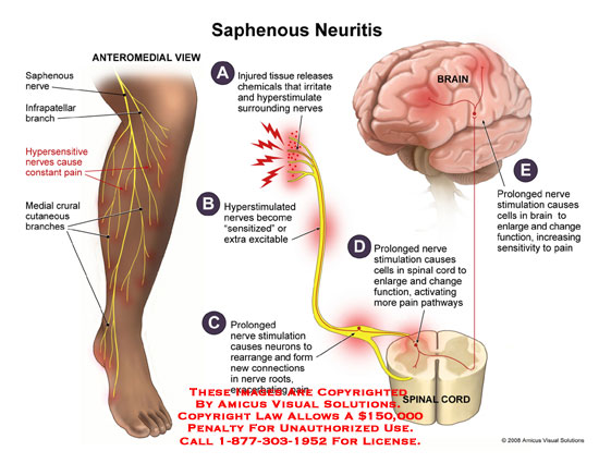 amicus,medical,saphenous,neuritis,infrapatellar,nerves,hypersensitive,crural,cutaneous,branches,hyperstimulate,excitable,pathways,painful,changes,brain,mechanism