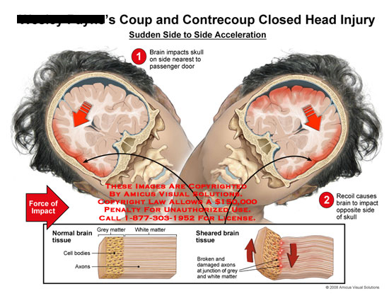 amicus,injury,mechanism,coup,contrecoup,head,closed,recoil,head,impact,brain,neurons,axons,axonal,white,grey,gray,matter,sheared,shearing,impact,diffuse,forces,side,acceleration