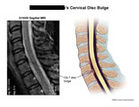 C6-7 disc bulge illustrated next to sagittal MRI film.