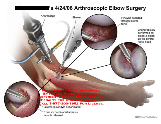 Arthroscopic views of synovitis debridement, chondroplasty, and epicondyle decortication.