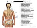 List of various trigger point and joint injections.