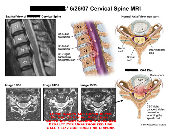 Diagram Of Cervical Spine Mri - Wiring Circuit •