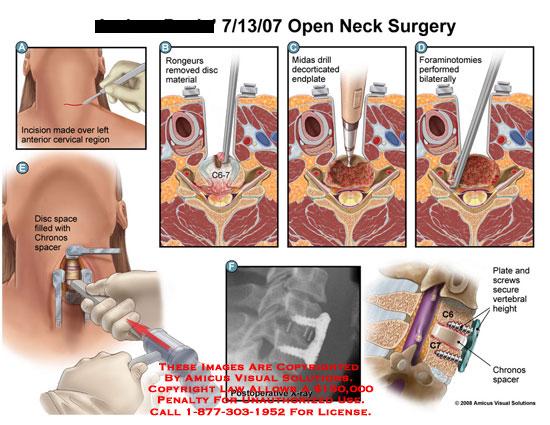 Open neck open neck surgery ccuart Images