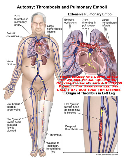 Body with leg in cast and thrombus migrating to pulmonary artery.