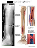 Fractures through tibia and fibula with damage to vein resulting in clot.