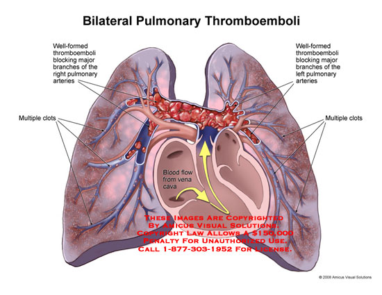Blood clots in pulmonary trunk and outlying vessels within lungs.