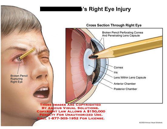 amicus,injury,eye,pencil,perforation,perforating,cornea,ruptured,lens,capsule,chamber,section