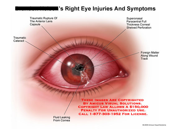 Medical diagrams and resources regarding Right eye with rupture of lens, cataract, and leaking fluid..