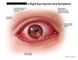 Right eye with rupture of lens, cataract, and leaking fluid.