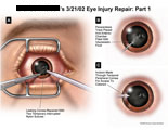 Corneal repair and incision for access to cataract.