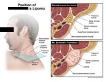 Axial sections through the neck showing location and depth of lipoma.