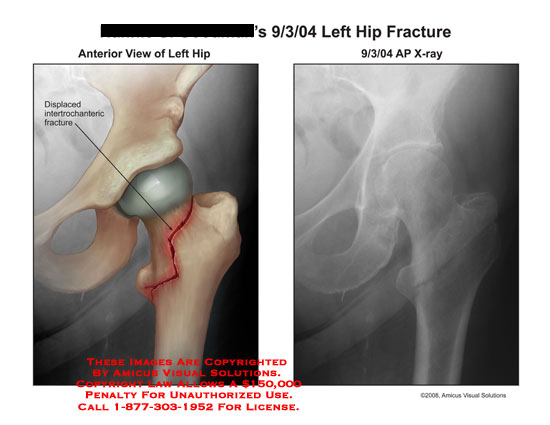 Displaced intertrochanteric fracture on X-ray.