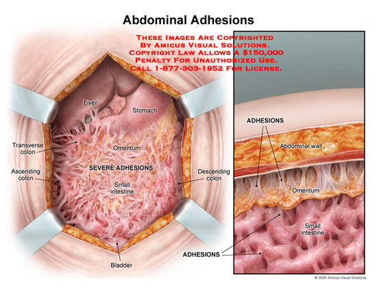 Abdomen opened exposing bowels covered with dense scar tissue.