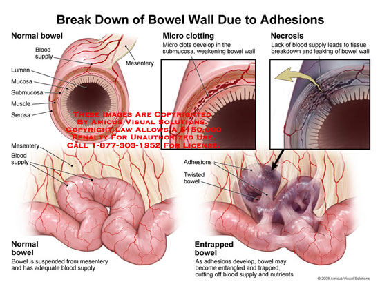 amicus,injury,medical,bowel,break,down,adhesions,necrosis,blood,supply,twisted,entrapped,entrapment,intestine
