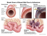 Twisted bowel with lack of bloody supply resulting in necrosis.