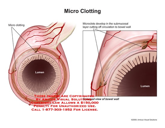 Medical diagrams and resources regarding Clots in submucosal layer cut off blood supply to bowel wall..
