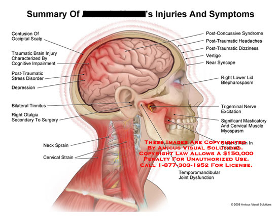 amicus,injury,summary,injuries,head,neck,jaw,contusion,brain,tinnitus,otalgia,sprain,strain,cervical,syndrome,vertigo,syncope,blepharospasm,trigeminal,masticatory,myospasm,tooth,pain,tmj,temporomandibular