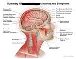 Tinnitus vertigo neck pain youtube