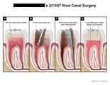 Pulpitis removed, canal filed down, and cavity filled with enamel.