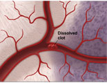 Animated process of clot blocking artery and infarcting brain tissue.