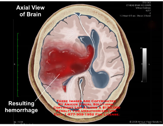 Animated process of blood spilling into brain tissue resulting in midline shift.