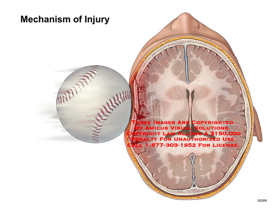 Axial view of a baseball hitting the side of a child's head